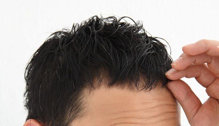 【簡単に治る】お金をかけず頭皮の湿疹とかゆみを完治させた方法とは